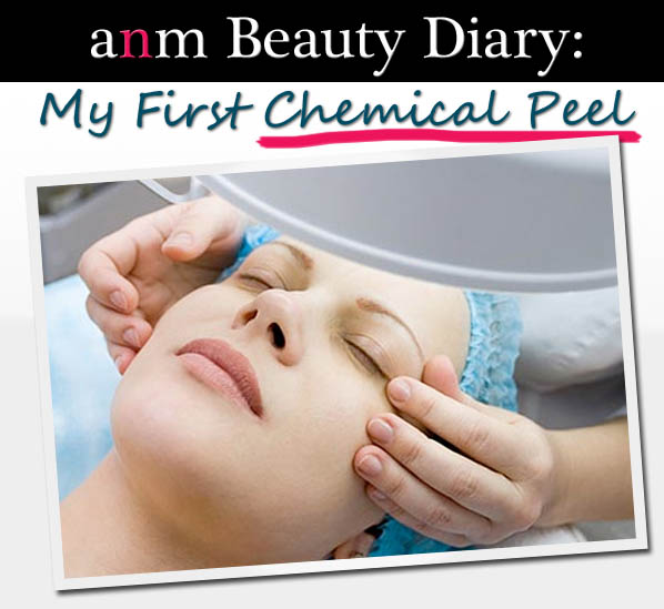 ANM Beauty Diary: My First Chemical Peel post image